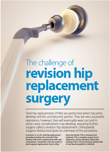 Would like help on revision hip-replacement surgery?