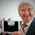 Oldest Hip Replacement
