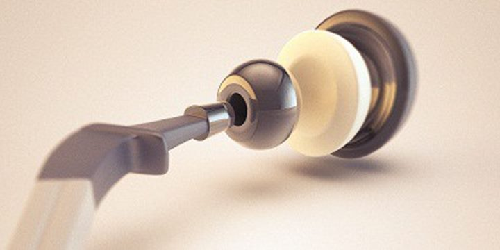 Hip Replacement Revision